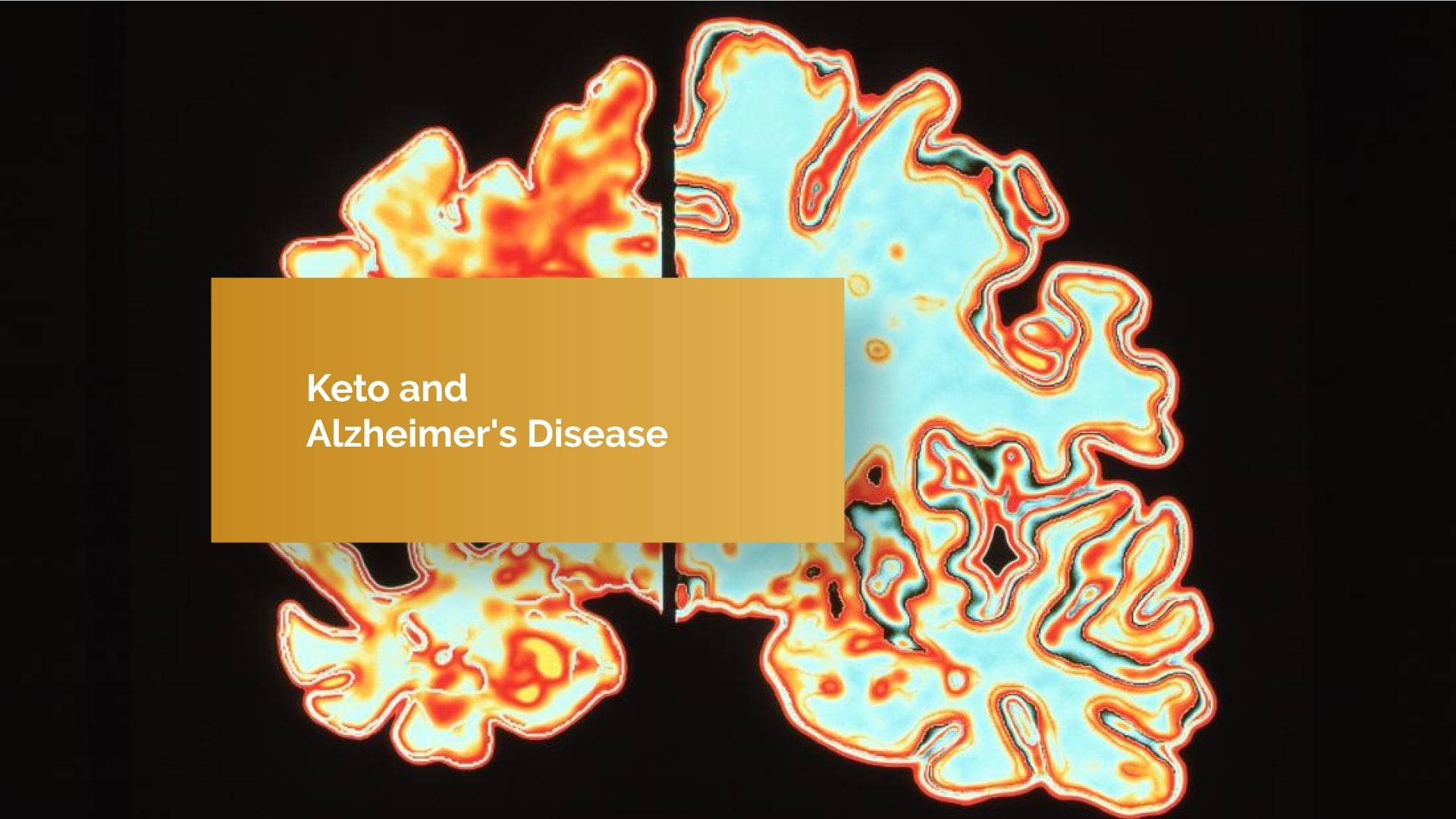Keto Diet and Alzheimer's Disease